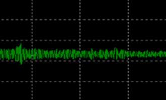 超声导波检测技术