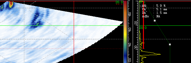 PAUT管道裂纹分析